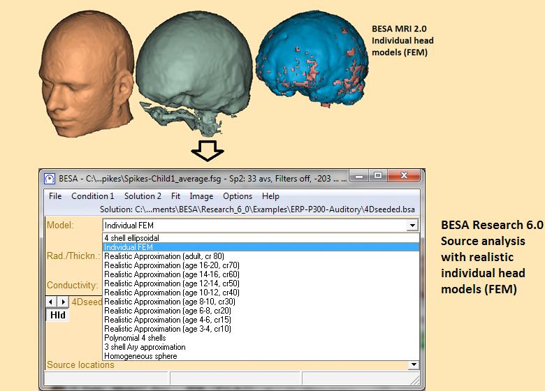 BESA-MRI_Individual-realistic-head-models