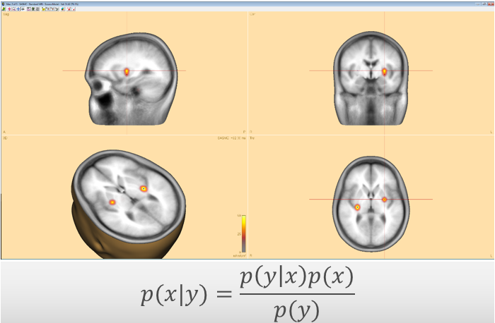Bayesian source imaging