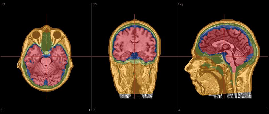 BESA MRI – FEM Model