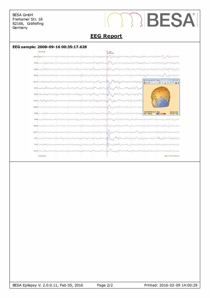 BESA_Epilepsy_2_0_EEG_Report_Page2