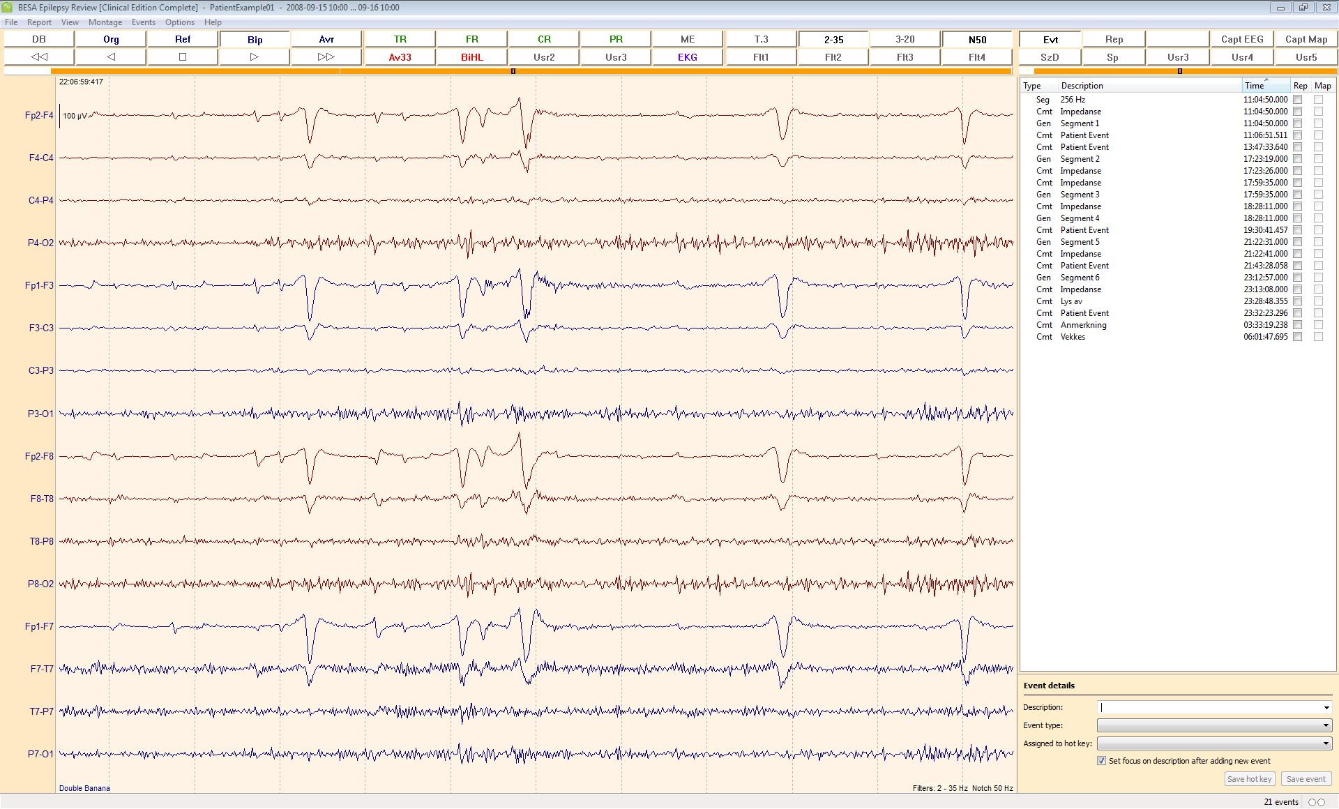 BESA_Epilepsy_2_0_EEG_Review