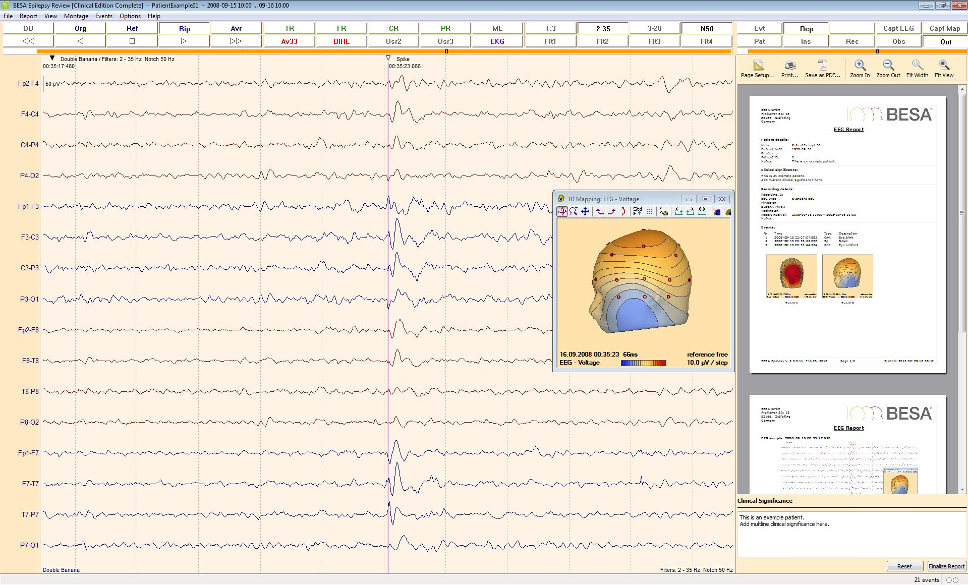 BESA_Epilepsy_2_0_EEG_Review_Report