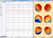 EEG-Review-3DMap