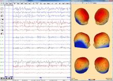 EEG-Review-3DMap