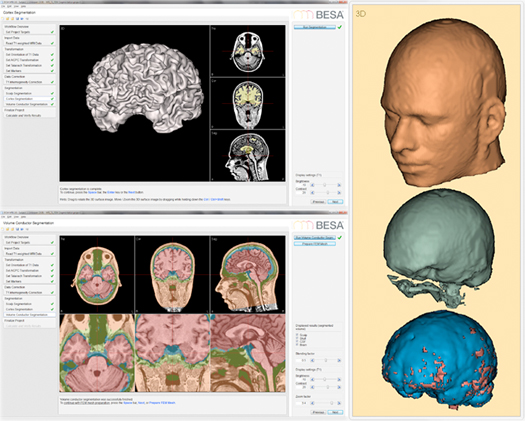 image-content-top_besa-mri-features-automatic-individual-head-generation