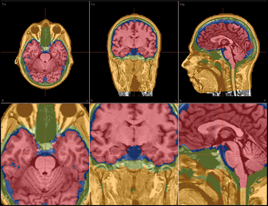 image-content-top_besa-research-features-integration-with-mri-and-fmri